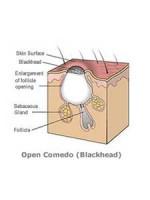 file_42_8111_blackhead-guide-definition-01